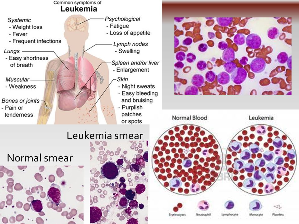 Normal smear Leukemia smear