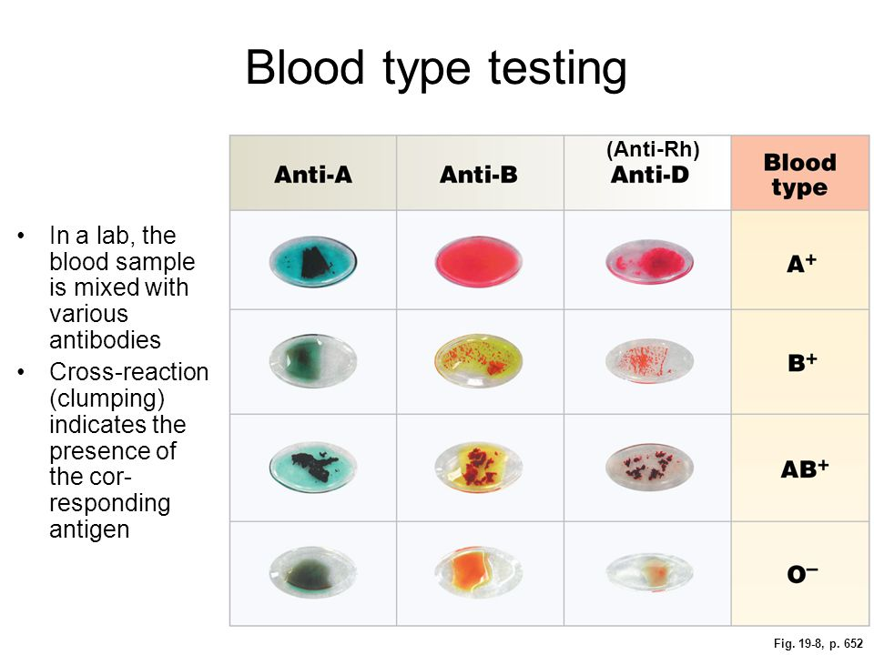 Fig. 19-8, p. 652 Blood type testing In a lab, the blood sample is mixed with various antibodies Cross-reaction (clumping) indicates the presence of t