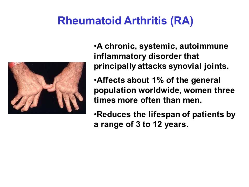 Etiology of RA Genetic factors (50-60%): HLA-DR4 PTPN22 PAD4 Environmental factors (40-50%): Smoking Microbial infection ( eg.