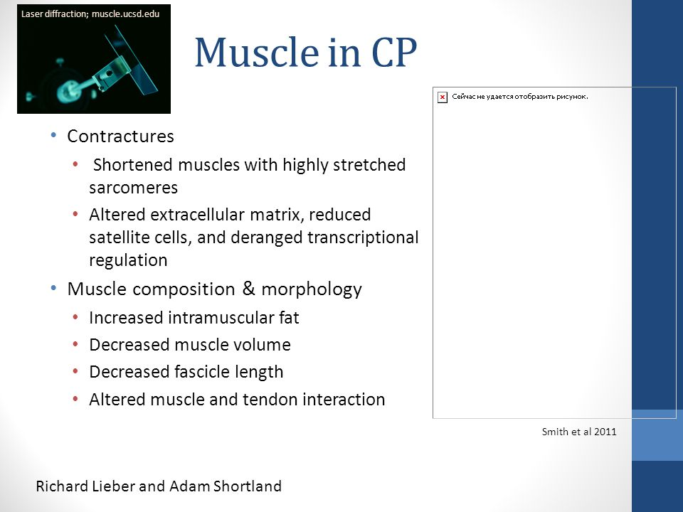 Muscle in CP Contractures Shortened muscles with highly stretched sarcomeres Altered extracellular matrix, reduced satellite cells, and deranged trans
