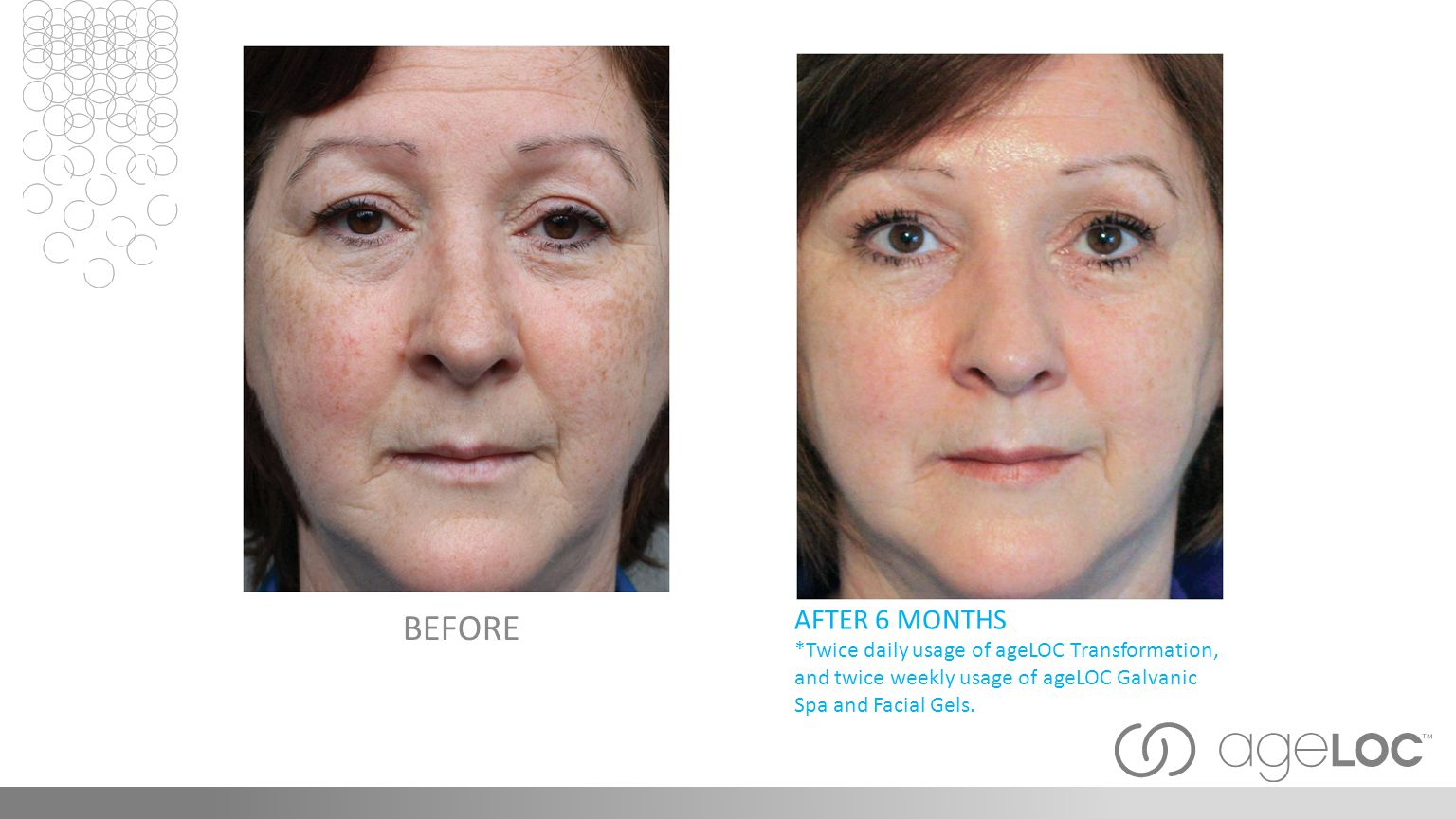 AFTER 6 MONTHS *Twice daily usage of ageLOC Transformation, and twice weekly usage of ageLOC Galvanic Spa and Facial Gels.