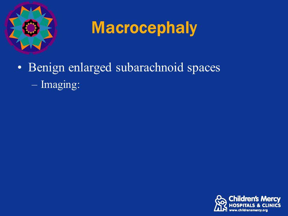 Macrocephaly Benign enlarged subarachnoid spaces –Imaging:
