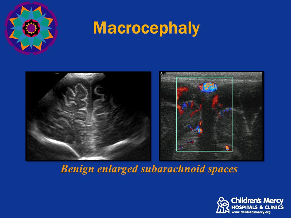 Benign enlarged subarachnoid spaces Macrocephaly