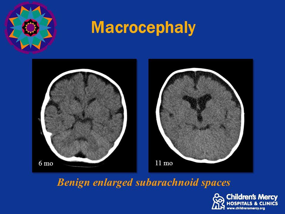 Macrocephaly Benign enlarged subarachnoid spaces 6 mo 11 mo