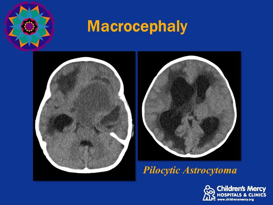 Macrocephaly Pilocytic Astrocytoma