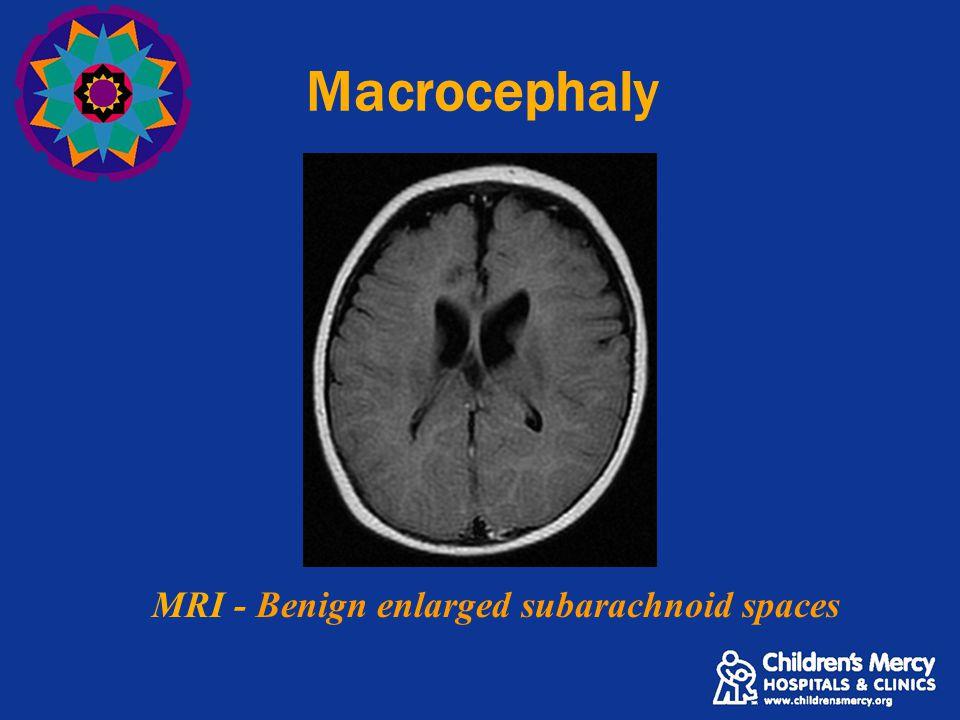 MRI - Benign enlarged subarachnoid spaces Macrocephaly