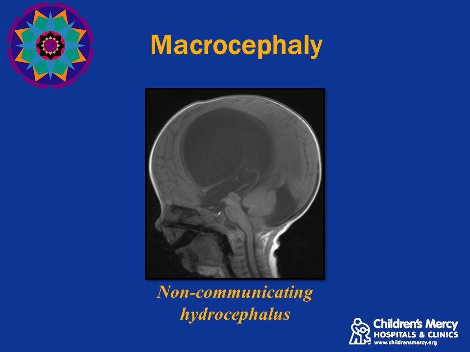 Macrocephaly Non-communicating hydrocephalus