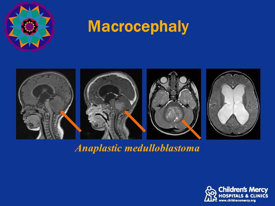 Macrocephaly Anaplastic medulloblastoma
