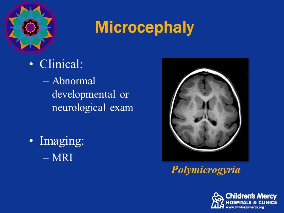 Microcephaly Clinical: –Abnormal developmental or neurological exam Imaging: –MRI Polymicrogyria