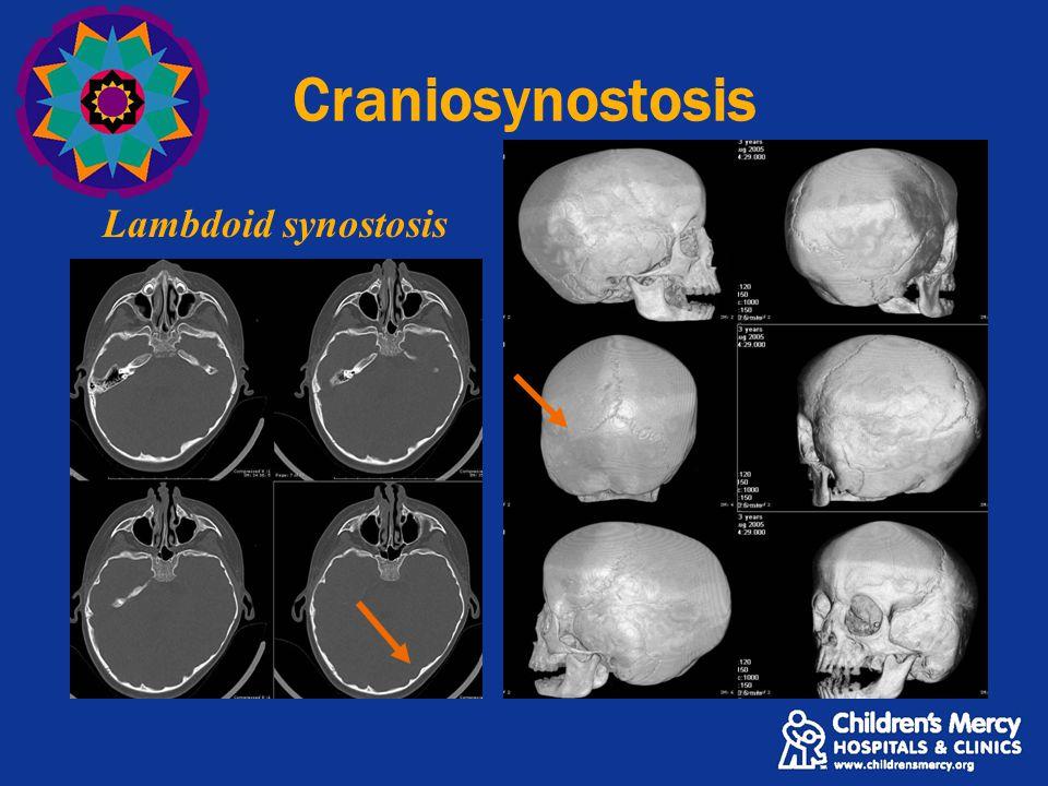 Craniosynostosis Lambdoid synostosis