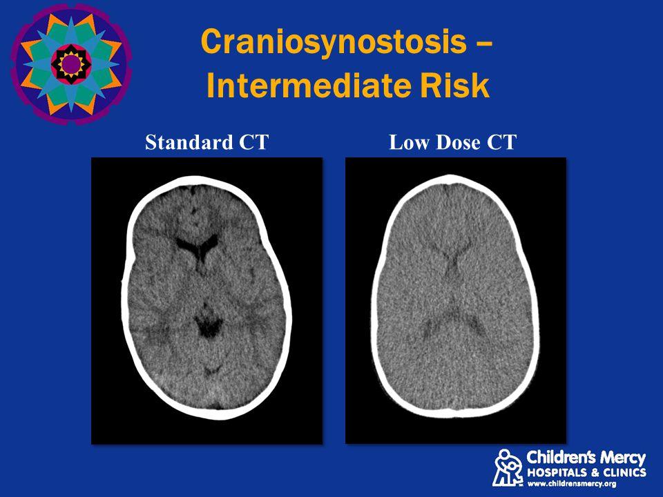 Craniosynostosis – Intermediate Risk Standard CTLow Dose CT