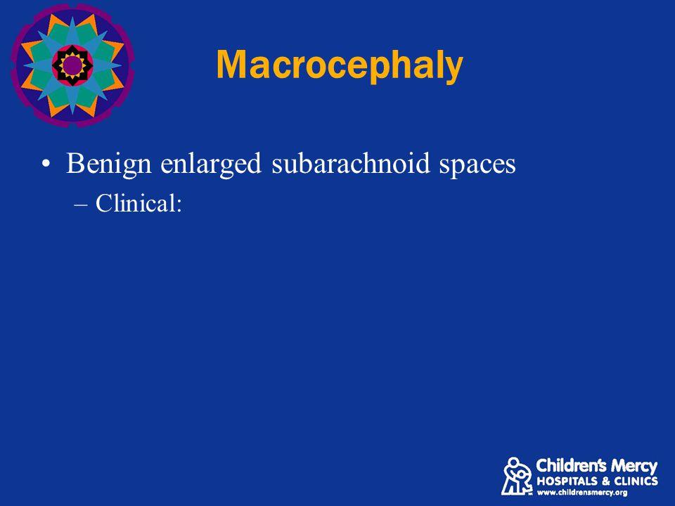 Macrocephaly Benign enlarged subarachnoid spaces –Clinical: