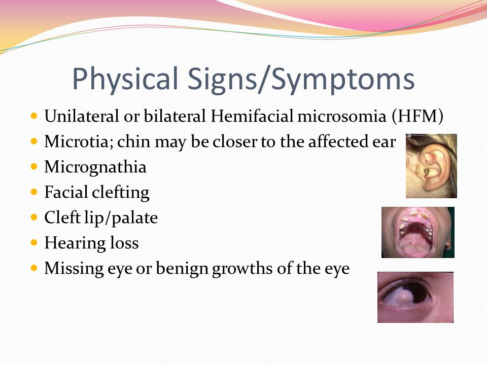 Physical Signs/Symptoms Unilateral or bilateral Hemifacial microsomia (HFM) Microtia; chin may be closer to the affected ear Micrognathia Facial cleft