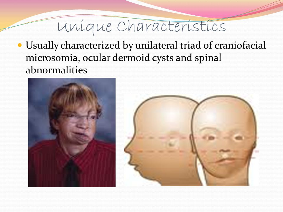 Unique Characteristics Usually characterized by unilateral triad of craniofacial microsomia, ocular dermoid cysts and spinal abnormalities