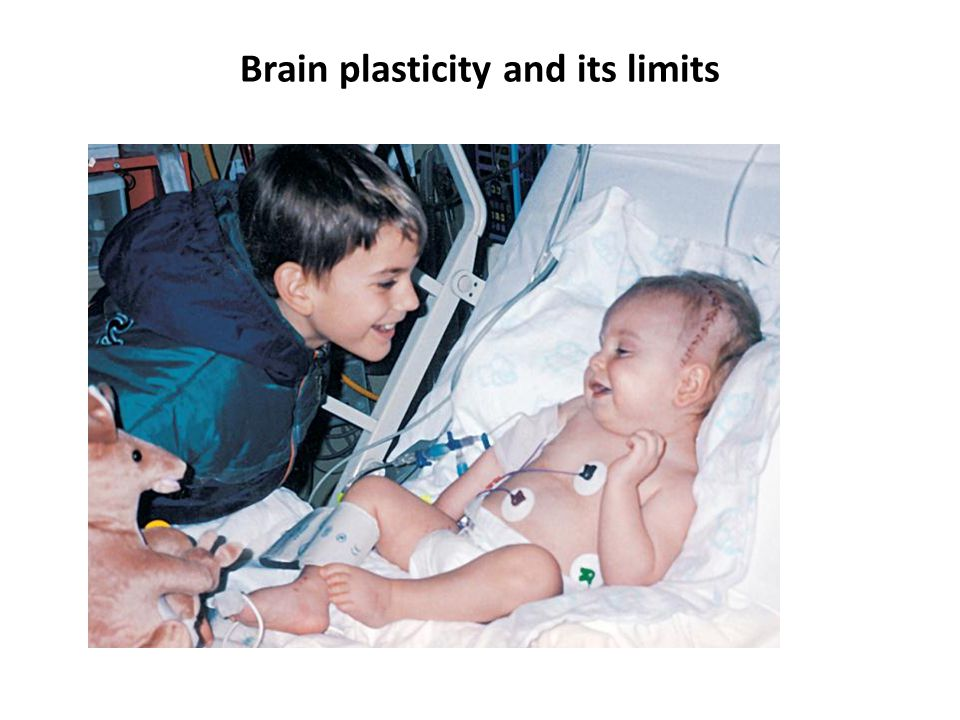 Brain plasticity and its limits