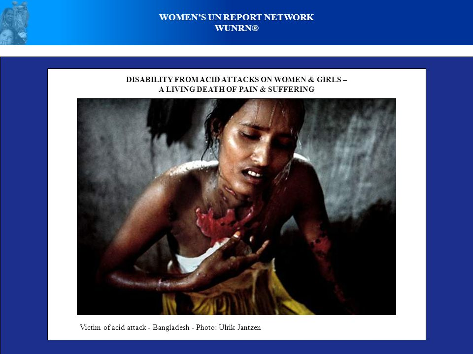 WOMEN'S UN REPORT NETWORK WUNRN® DISABILITY FROM ACID ATTACKS ON WOMEN & GIRLS – A LIVING DEATH OF PAIN & SUFFERING Victim of acid attack - Bangladesh - Photo: Ulrik Jantzen
