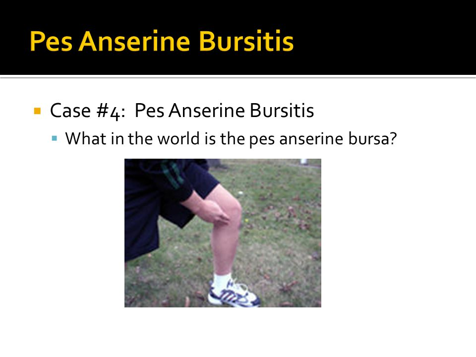  Case #4: Pes Anserine Bursitis  What in the world is the pes anserine bursa?