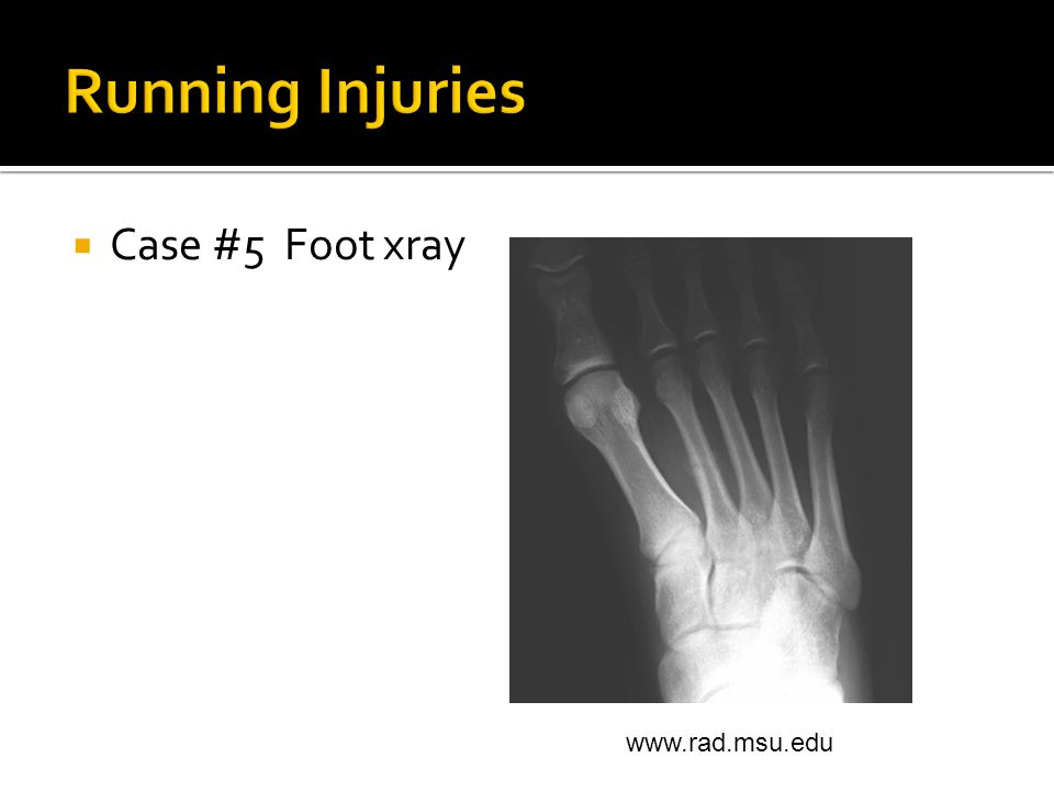  Case #5 Foot xray www.rad.msu.edu