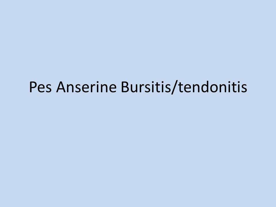 Pes Anserine Bursitis/tendonitis