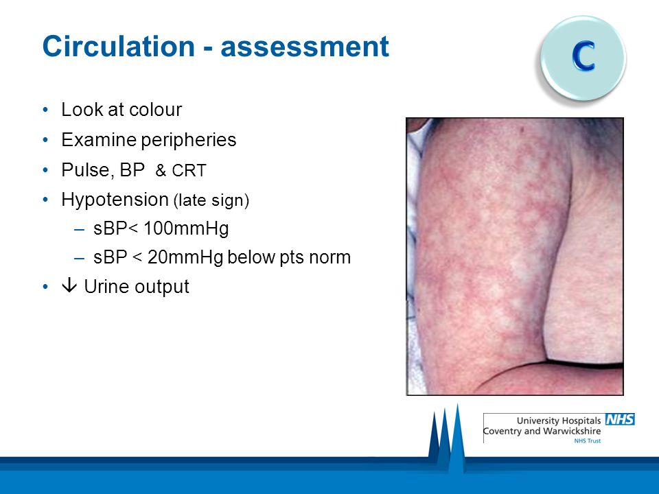 Circulation - assessment Look at colour Examine peripheries Pulse, BP & CRT Hypotension (late sign) –sBP< 100mmHg –sBP < 20mmHg below pts norm  Urine output
