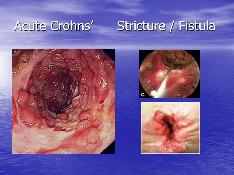 Acute Crohns' Stricture / Fistula