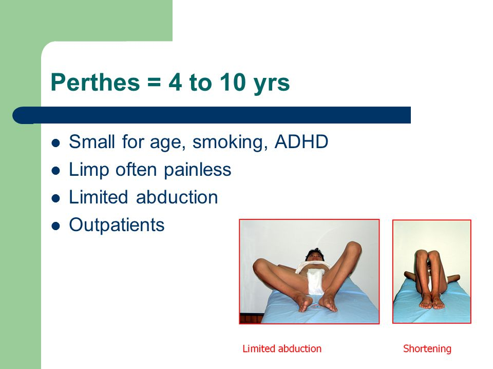 Perthes = 4 to 10 yrs Small for age, smoking, ADHD Limp often painless Limited abduction Outpatients