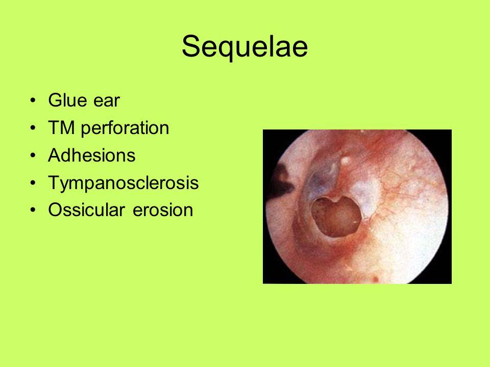Sequelae Glue ear TM perforation Adhesions Tympanosclerosis Ossicular erosion