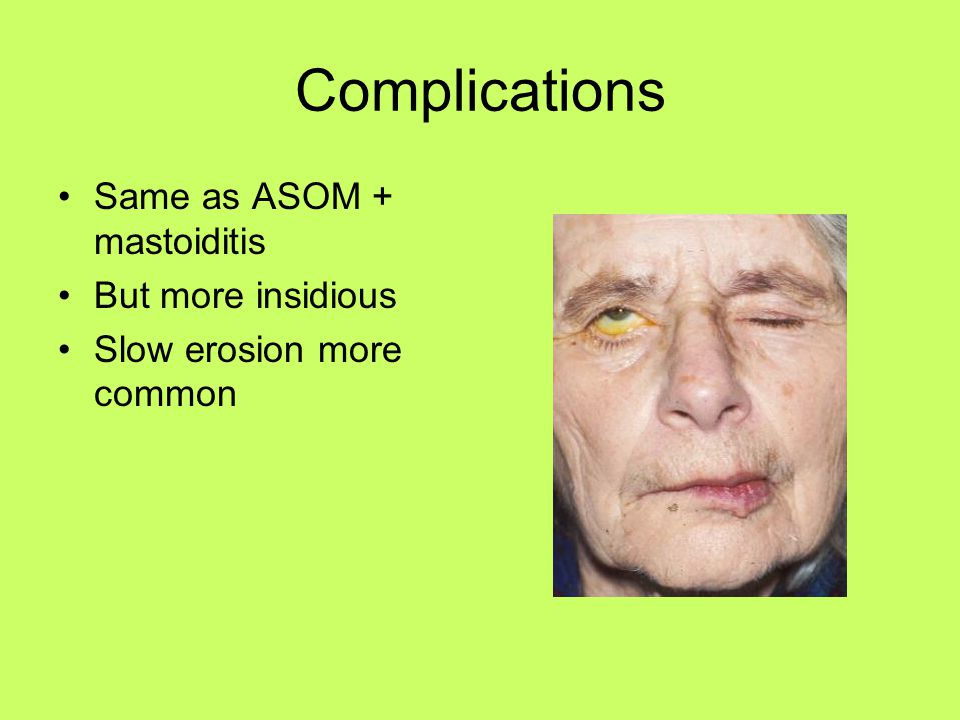 Complications Same as ASOM + mastoiditis But more insidious Slow erosion more common