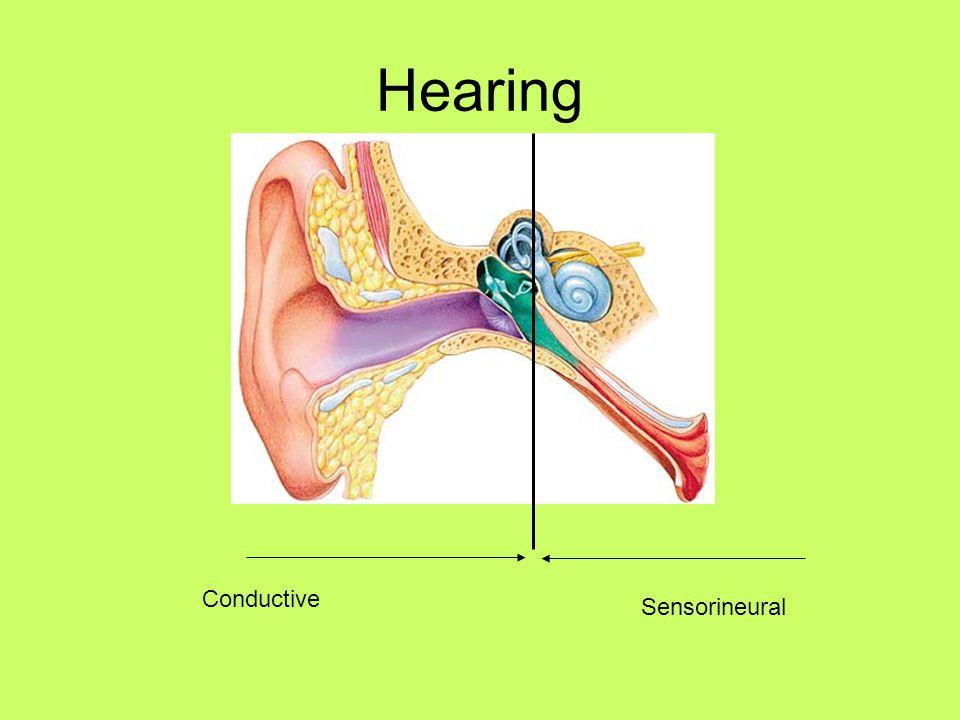 Hearing Conductive Sensorineural