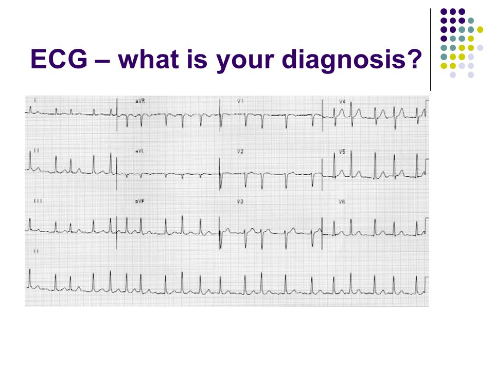 ECG – what is your diagnosis?