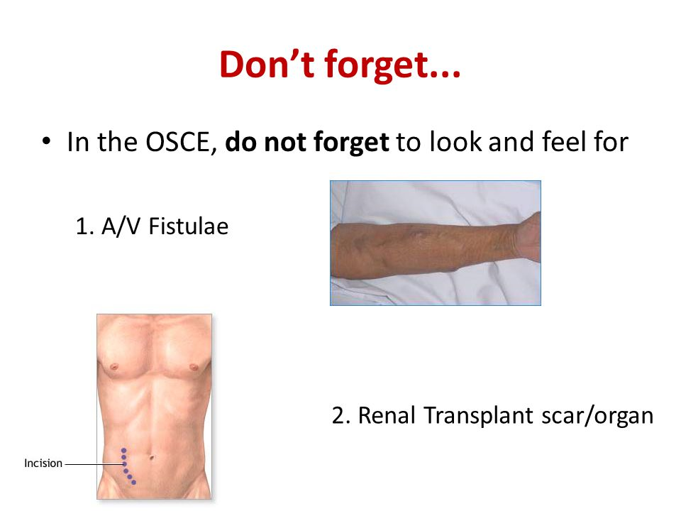 Don't forget... In the OSCE, do not forget to look and feel for 1. A/V Fistulae 2. Renal Transplant scar/organ