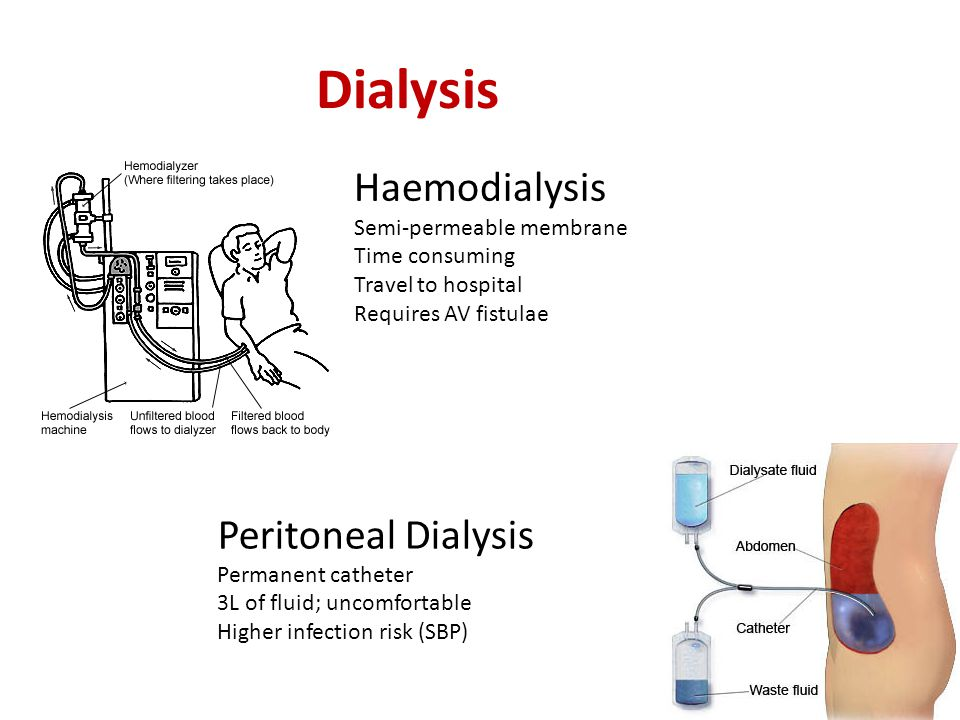 Dialysis Haemodialysis Semi-permeable membrane Time consuming Travel to hospital Requires AV fistulae Peritoneal Dialysis Permanent catheter 3L of fluid; uncomfortable Higher infection risk (SBP)