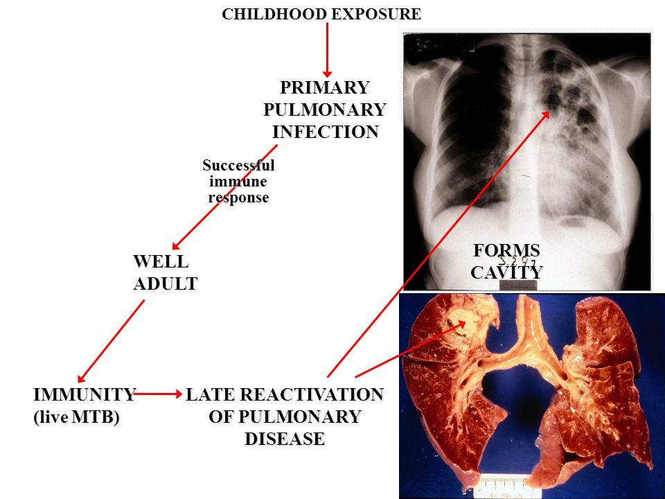 CHILDHOOD EXPOSURE PRIMARYPULMONARYINFECTION WELLADULT IMMUNITY (live MTB) Successfulimmuneresponse LATE REACTIVATION OF PULMONARY DISEASE FORMSCAVITY