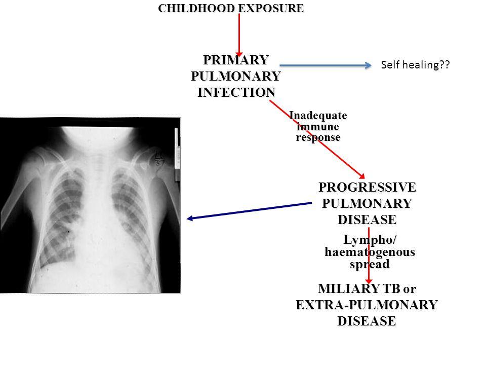 CHILDHOOD EXPOSURE PRIMARYPULMONARYINFECTION PROGRESSIVEPULMONARYDISEASE MILIARY TB or EXTRA-PULMONARYDISEASE Inadequateimmuneresponse Lympho/haematog