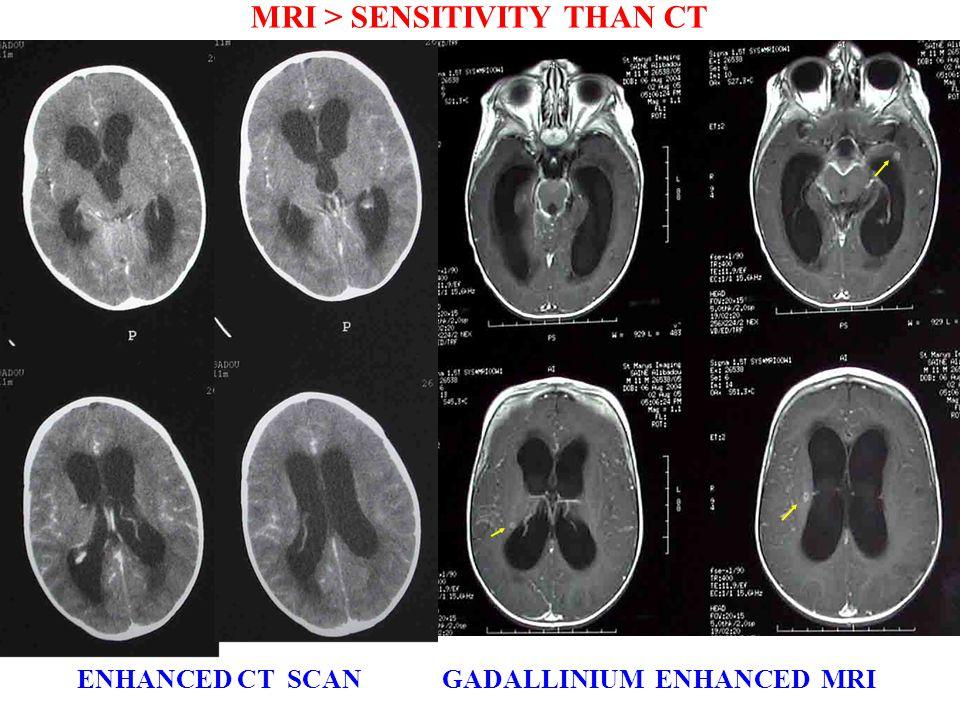 ENHANCED CT SCAN GADALLINIUM ENHANCED MRI ENHANCED CT SCAN GADALLINIUM ENHANCED MRI MRI > SENSITIVITY THAN CT