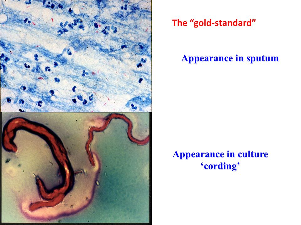 """Appearance in sputum Appearance in culture 'cording' The """"gold-standard"""""""