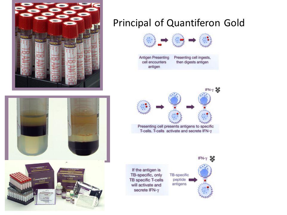 Principal of Quantiferon Gold