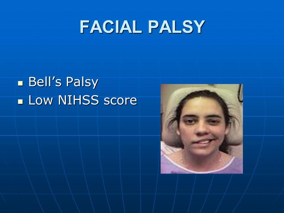 FACIAL PALSY Bell's Palsy Bell's Palsy Low NIHSS score Low NIHSS score