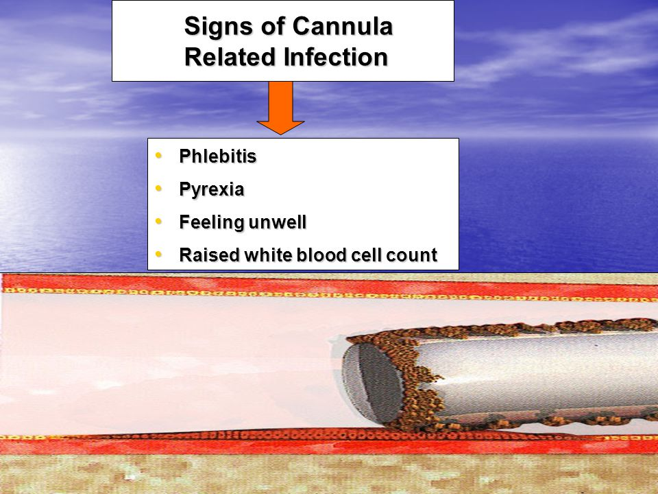 Signs of Cannula Related Infection Phlebitis Phlebitis Pyrexia Pyrexia Feeling unwell Feeling unwell Raised white blood cell count Raised white blood cell count