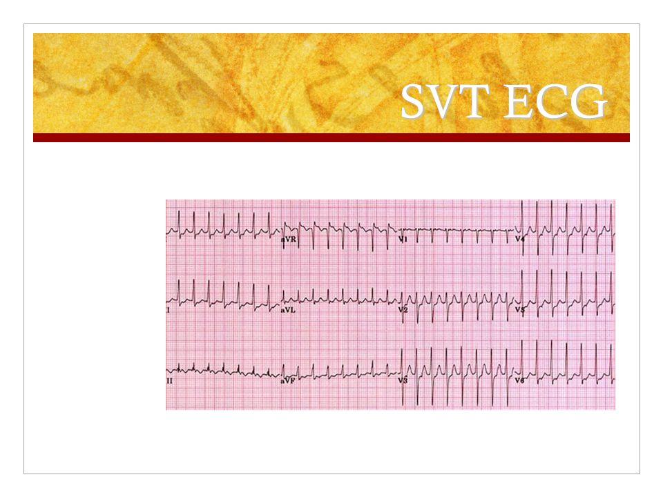 SVT ECG