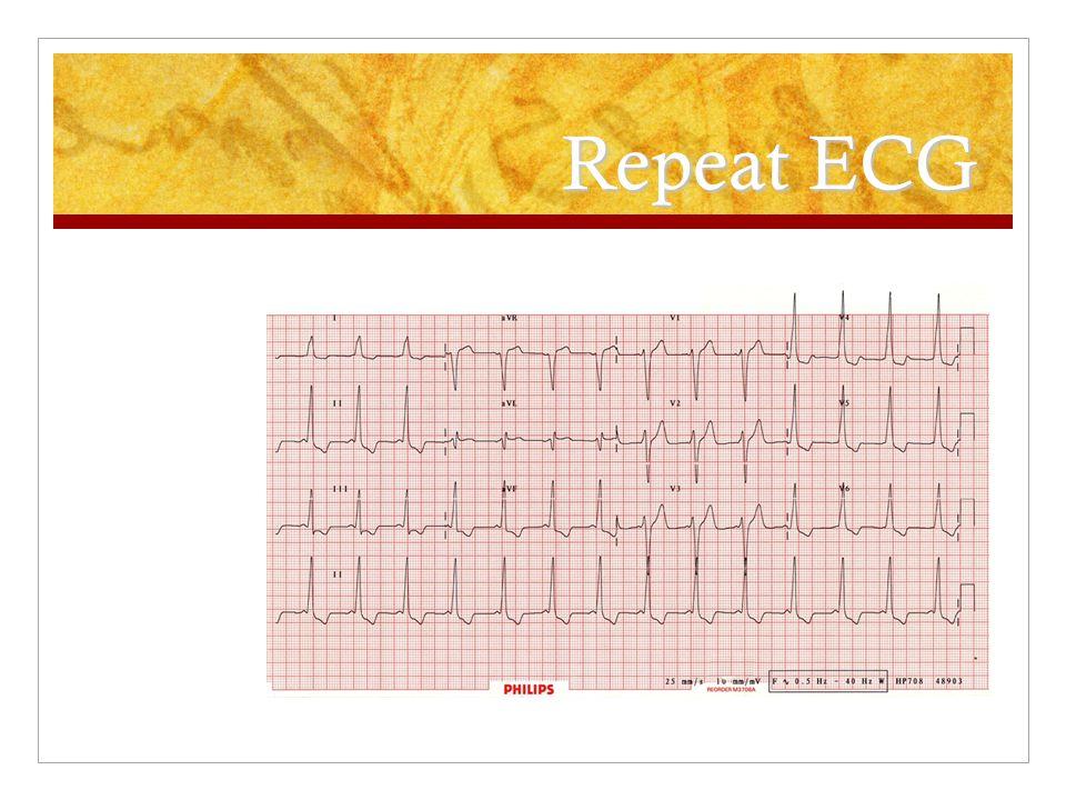 Repeat ECG