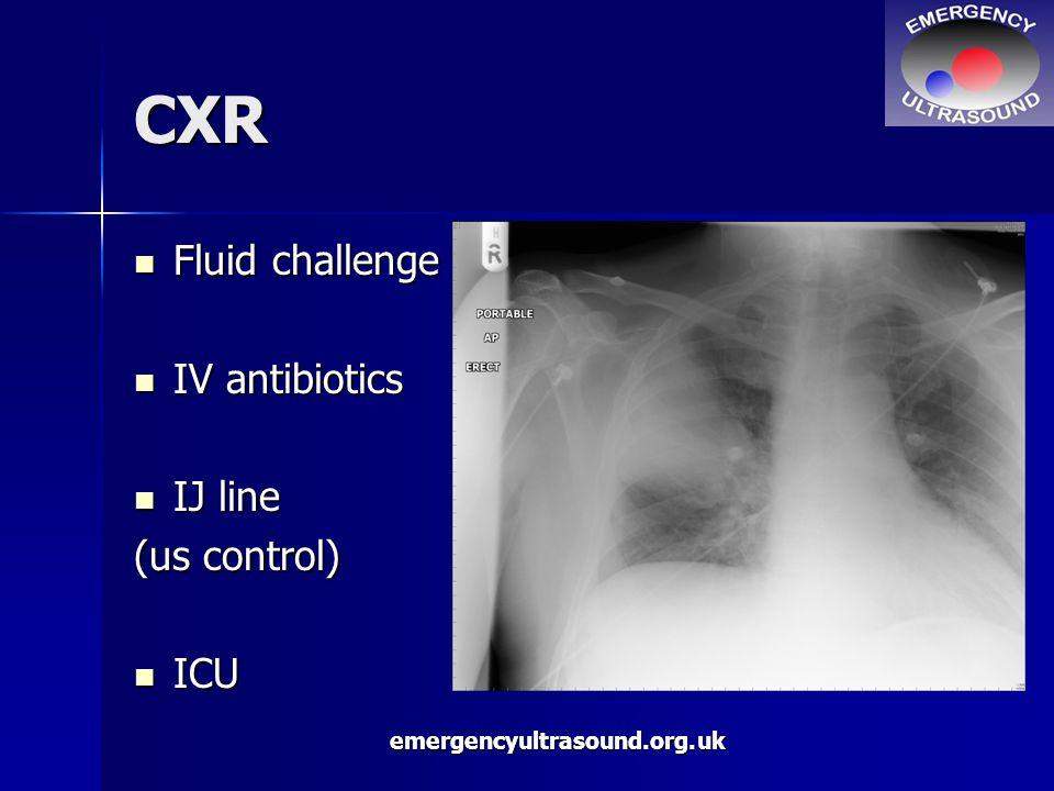 emergencyultrasound.org.uk CXR Fluid challenge Fluid challenge IV antibiotics IV antibiotics IJ line IJ line (us control) ICU ICU