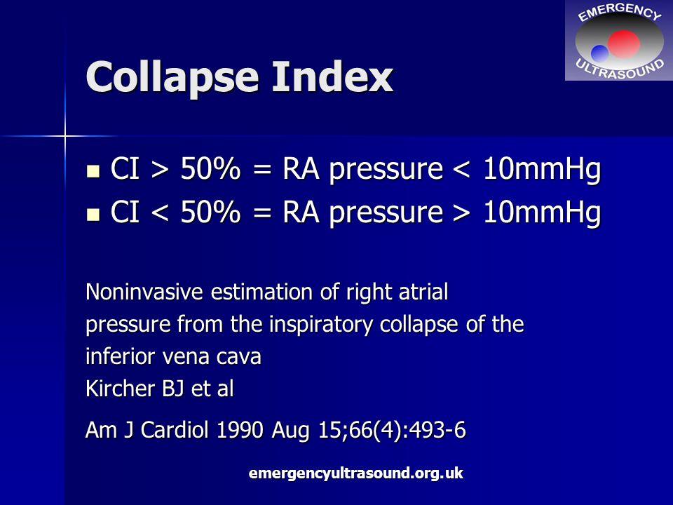 emergencyultrasound.org.uk Collapse Index CI > 50% = RA pressure 50% = RA pressure < 10mmHg CI 10mmHg CI 10mmHg Noninvasive estimation of right atrial