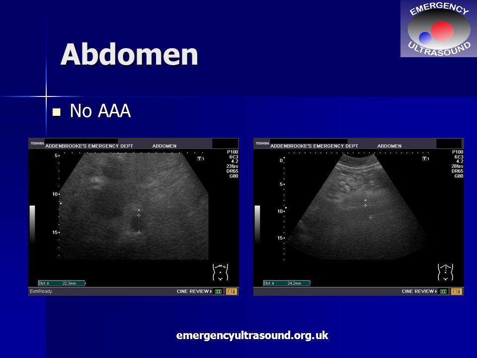 emergencyultrasound.org.uk Abdomen No AAA No AAA