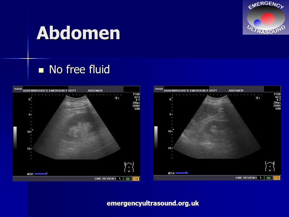 emergencyultrasound.org.uk Abdomen No free fluid No free fluid
