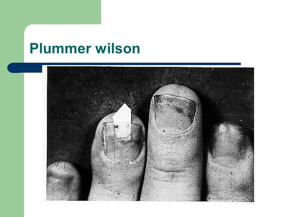 Plummer wilson