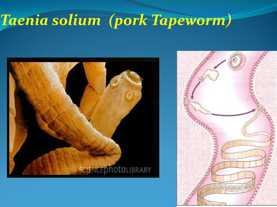 Taenia solium (pork Tapeworm)