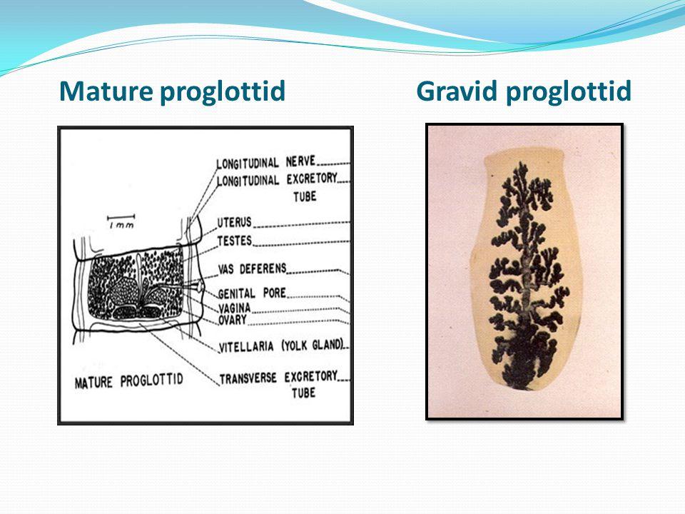 Mature proglottid Gravid proglottid