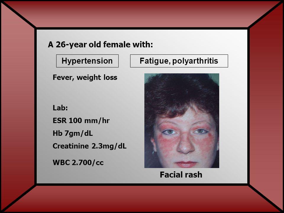 Facial rash A 26-year old female with: HypertensionFatigue, polyarthritis Lab: ESR 100 mm/hr Hb 7gm/dL Creatinine 2.3mg/dL WBC 2.700/cc Fever, weight loss
