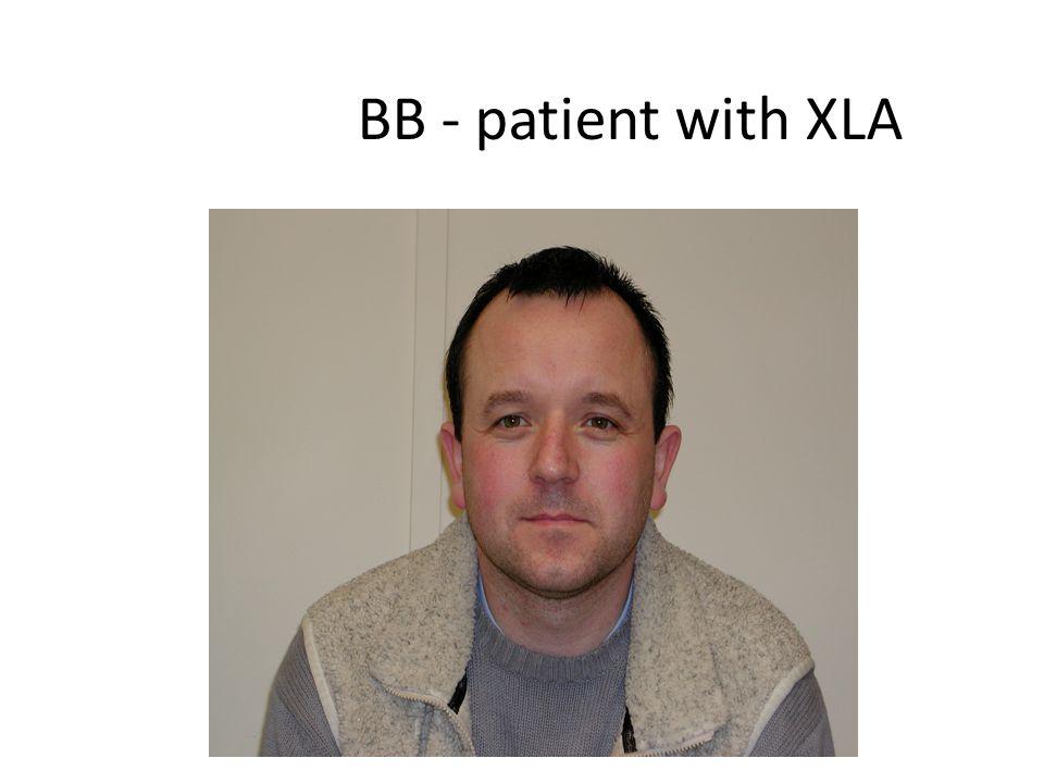 BB - patient with XLA